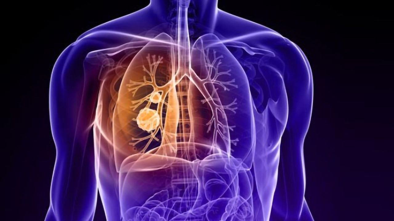 Guidance on Lung Cancer Screening and Management During COVID-19 Issued