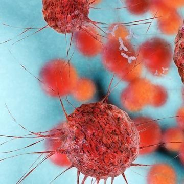 New Therapy For Lung And Ovarian Cancer Advances To Early Stage Clinical Development Technology Networks