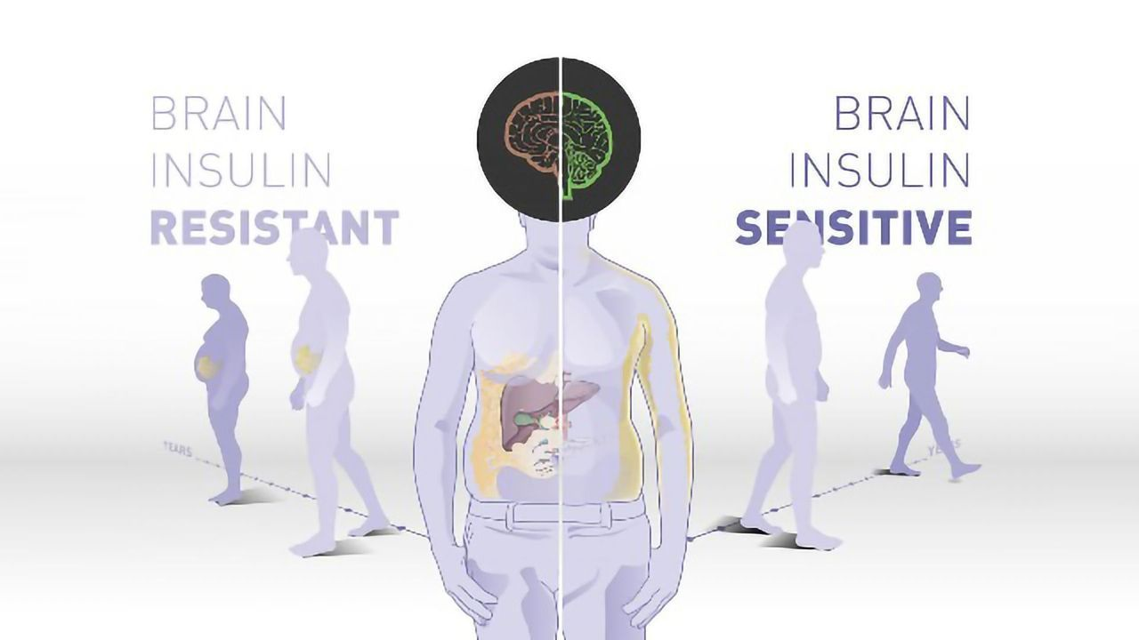 The Brain's Insulin Sensitivity May Play a Role in Weight Loss