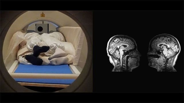 MRI and Chill? New Technique Allows Couples To Have Their Brains Scanned Simultaneously