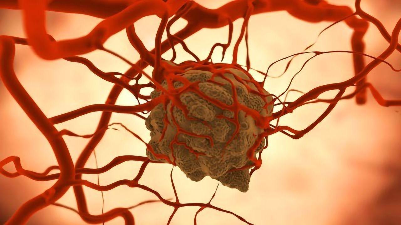 "Cytokine-secreting ""Backpacks"" Boost Immune Cells' Ability To Kill Cancer"