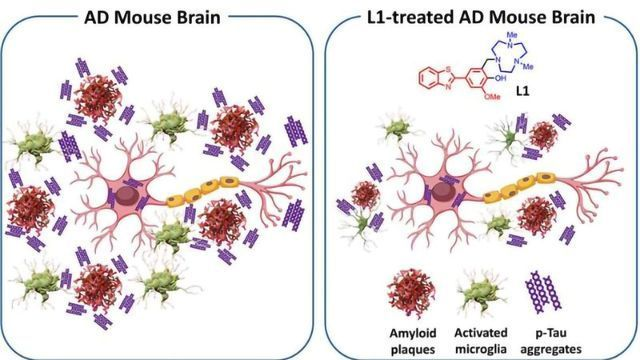 Molecule Reduces Multiple Pathologies Associated With Alzheimer's Disease