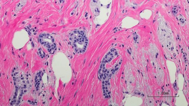 Immune Cell Alterations Could Aid Breast Cancer Detection