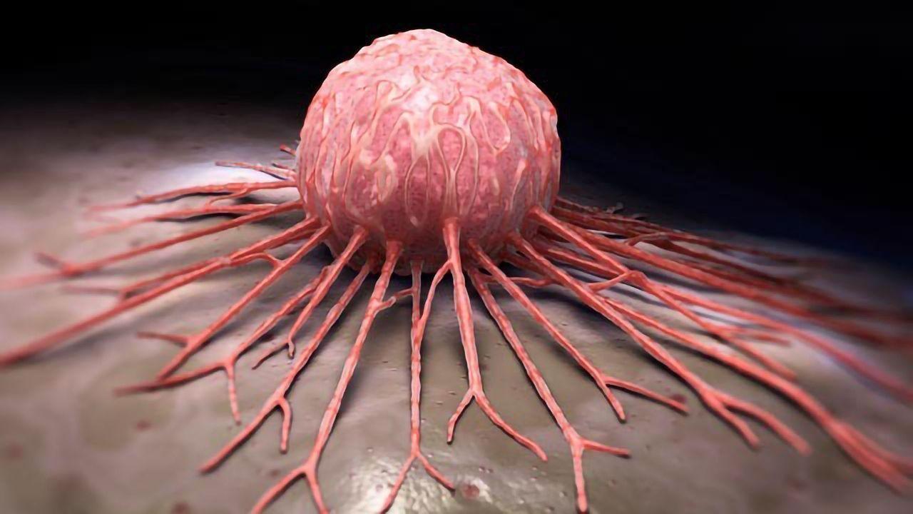 "Cancer Cells Adjust Their ""Velcro"" To Enhance Their Spread"