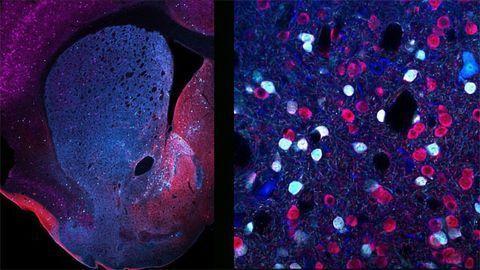 Neuronal Diversity in the Striatum