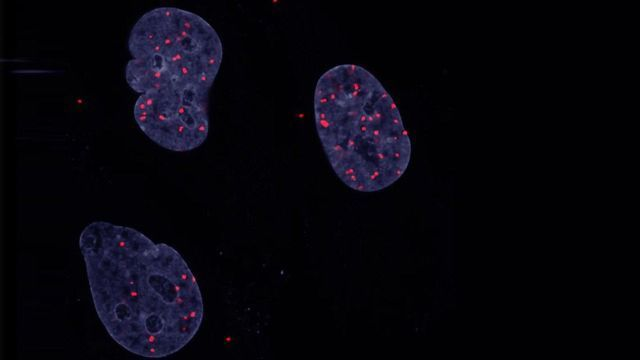 Insight Into Cancer Cells' Lack of Contact Inhibition