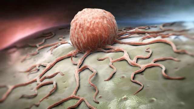 Mathematical Model Developed To Predict Prostate Cancer Aggressiveness