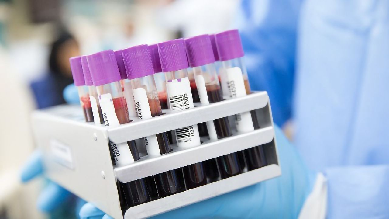 A Non-invasive Test for Early Detection of Endometrial Cancer Developed
