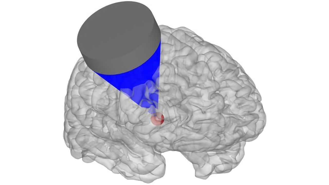 Ultrasound Waves Could Be Fired At the Brain for Mood-altering Precision Therapy