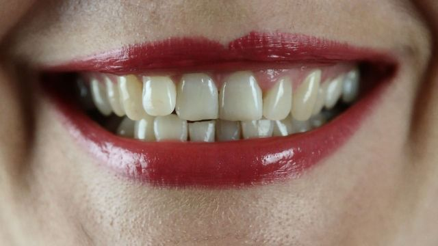 ALS Biomarkers Discovered in Teeth