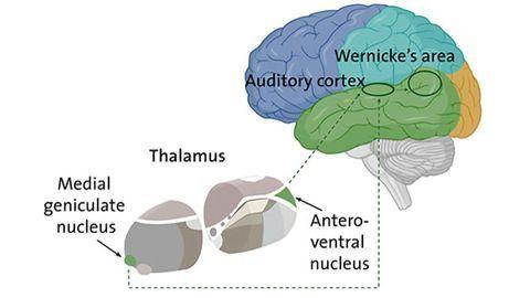 Schizophrenia: Is the Thalamus Misleading the Ear?