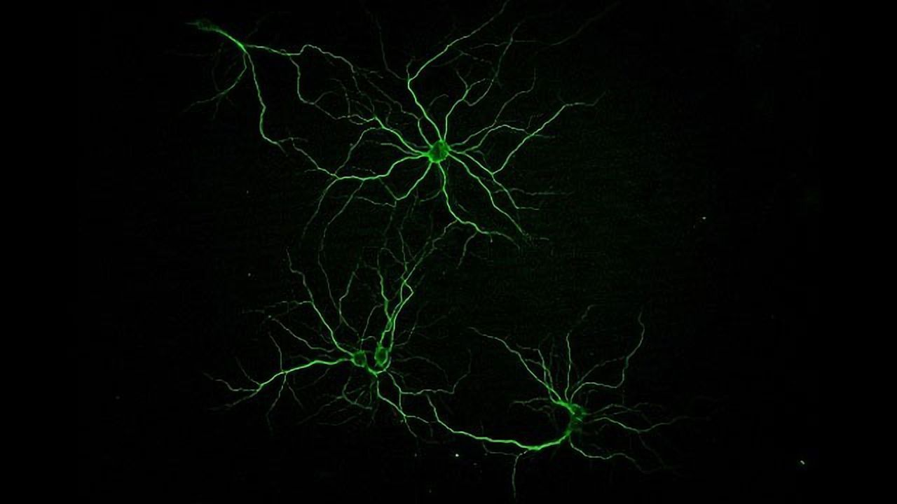 Primary Neurons in Culture