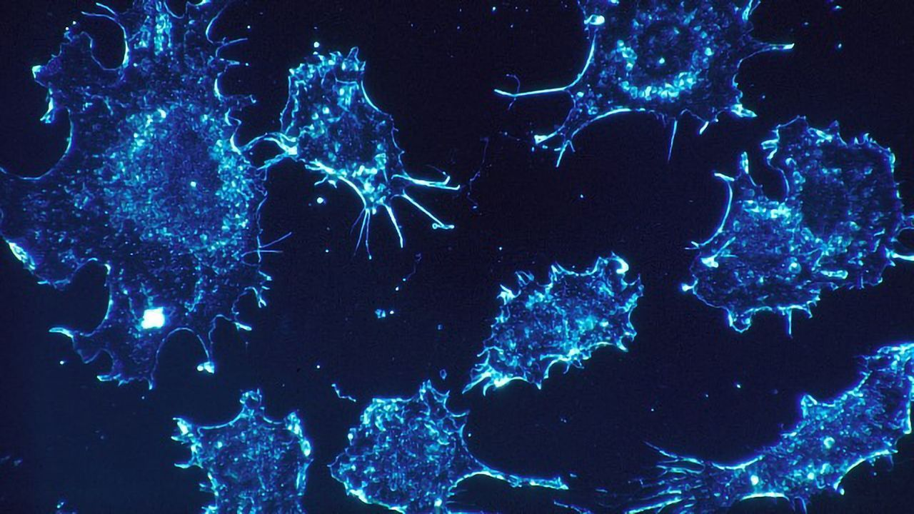 Cells Inside Cells: The Bacteria That Live in Cancer Cells