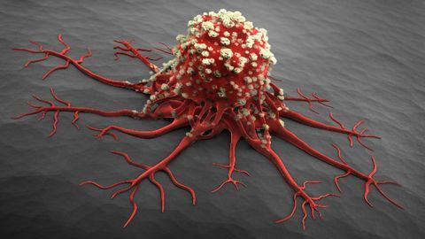 Cancer Cells Cause Inflammation To Shield Themselves From Viruses