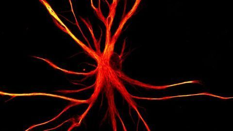 When Astrocytes Go Rogue: Why Do The Brain's Support Cells Turn Into Neuron Killers?