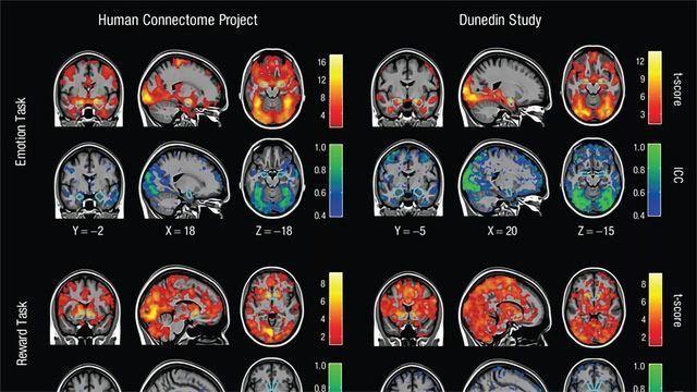 Brain Imaging Researcher Identifies Serious Flaw... in Brain Imaging