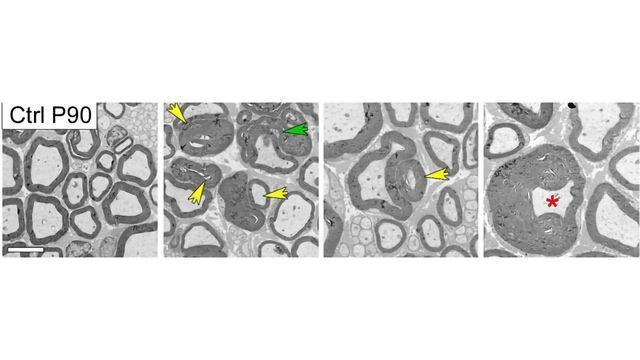 Researchers Identify Mechanism Behind Inherited Neuropathy Charcot-Marie-Tooth Disease