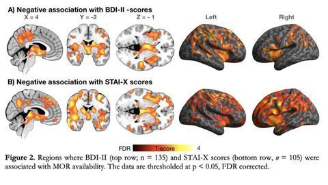 Brain's Opioid System Linked to Depression and Anxiety