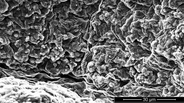 Primitive Stem Cells Could Help To Heal Complicated Bone Fractures