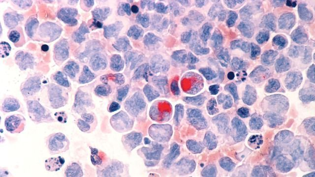 Nanoparticle Developed To Tackle Leukemia Treatment Resistance