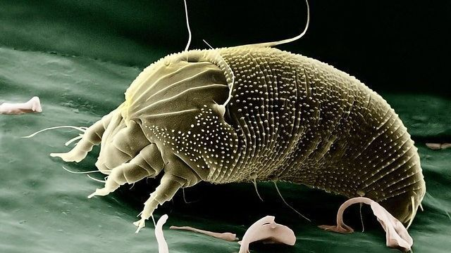 Pulmonary Immune System Triggered by Dust Mite Allergens