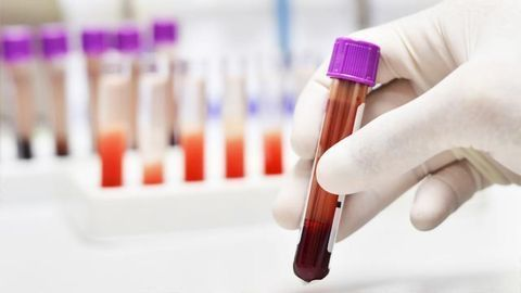 Diagnosing and Classifying Brain Tumors Using a Blood Test