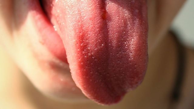 Tongue Microbes Could Provide Window to Heart Health
