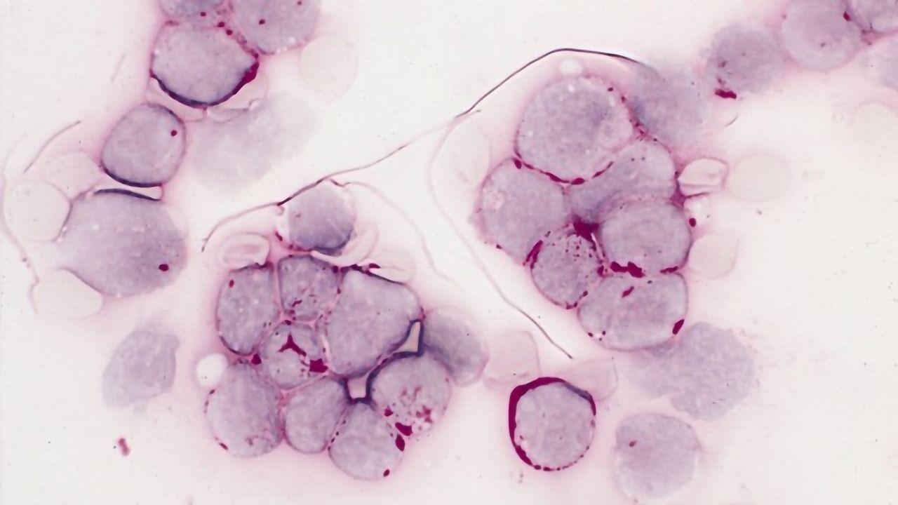 Leukemia Treatment Efficacy Mystery Explained