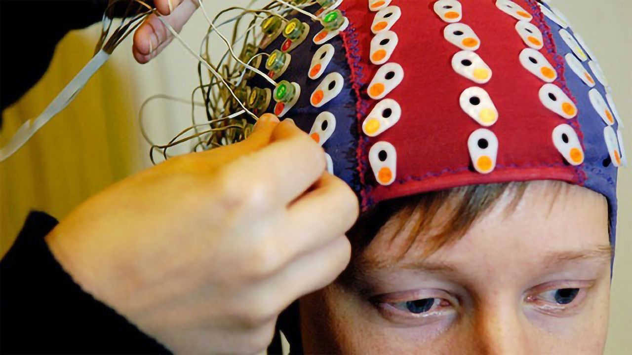 The Dyslexic Brain Struggles in Processing Variation in Speech