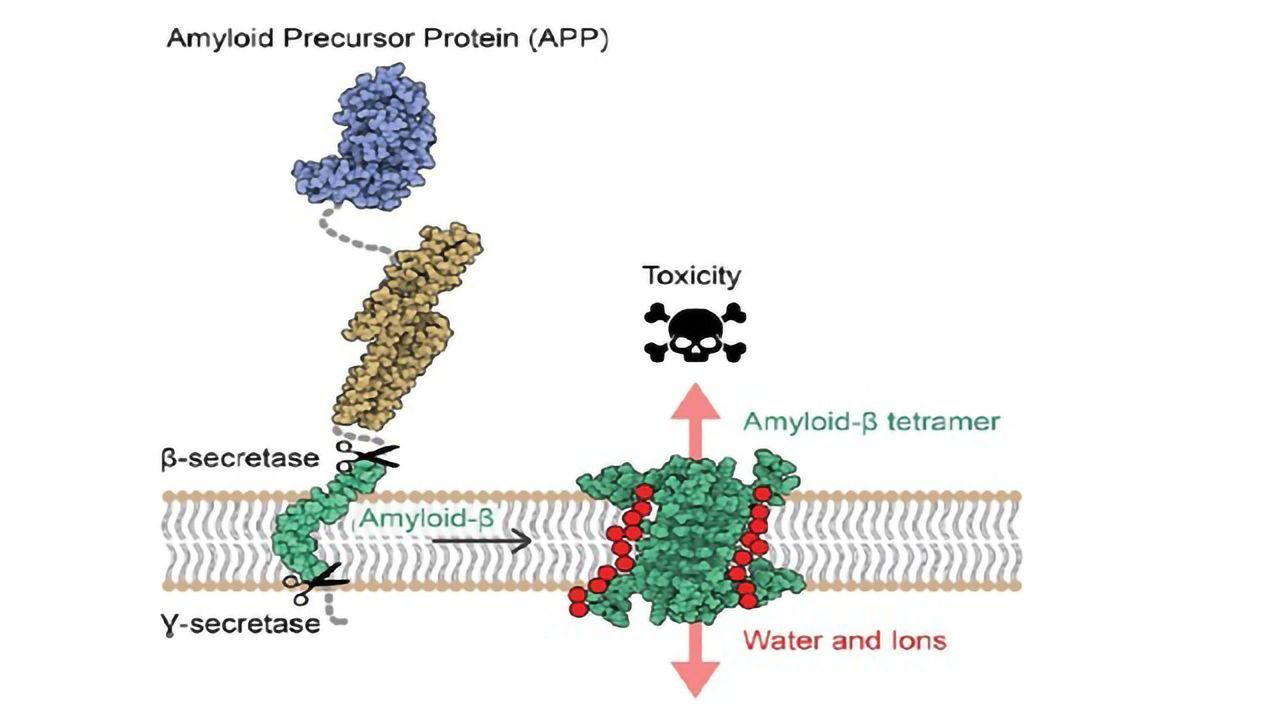 Atomic Structure of Aβ Protein Assemblies Revealed