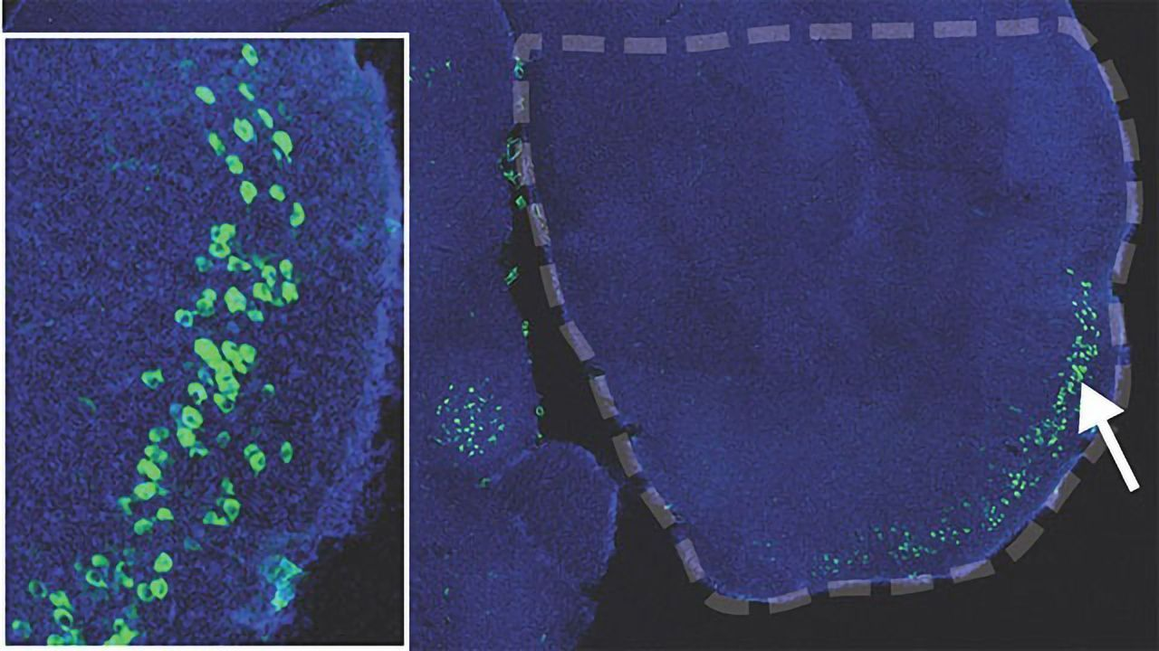Could Neuronal Plasticity Be a Risk Factor for Alzheimer's?