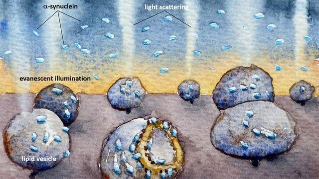 How Parkinson's Protein Destroys Cell Membranes