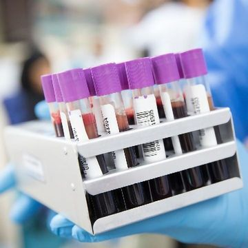 Blood Tests Can Help To Predict the Risk of Liver Cirrhosis