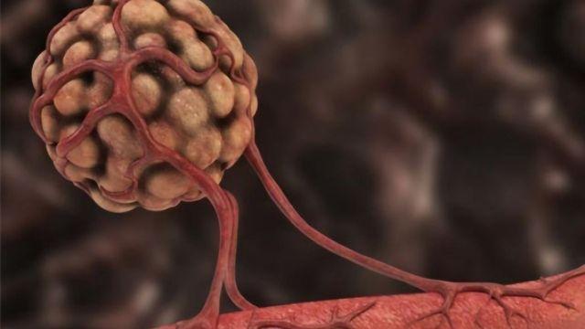 A Mirror-image Peptide Tumor Treatment