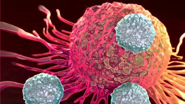 """Breast Cancer Cells """"Convince"""" Killer Immune Cells To Help Them Spread"""