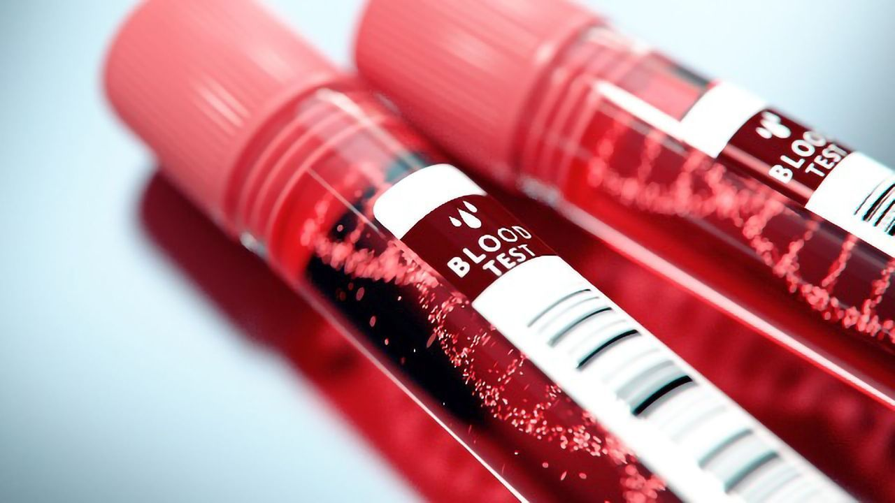 Blood Test Detects Over 50 Different Cancers With a 0.7% False-Positive Rate
