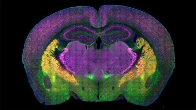 Autism Researchers Map the Brain's Social Preference Circuits