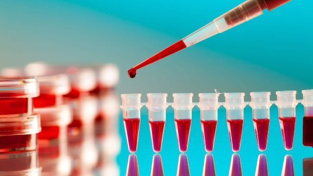 Breakthrough: New Blood Test Detects Positive COVID-19 Result in 20 minutes