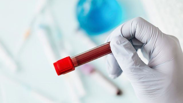 Higher End of Normal Blood Platelet Count Could Indicate Cancer