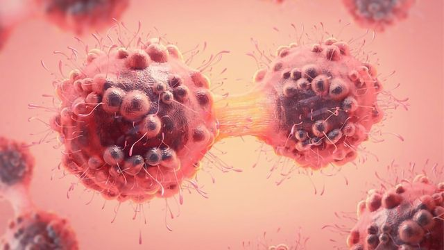 Team Reveals How Spermine Synthase Aids Colorectal Cancer Growth