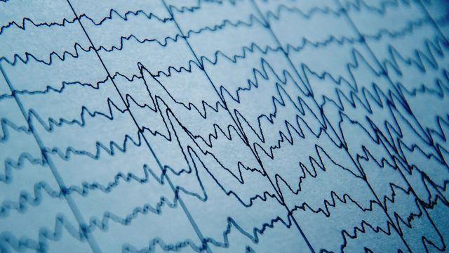 Brain Waves Can Predict Pain Sensitivity
