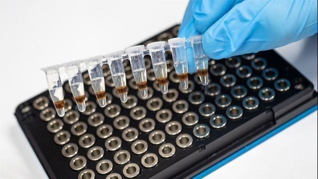 More Evidence Links Diabetes Biomarkers and Alzheimer's Disease
