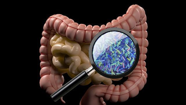 Link Between Gut Microbiome and Cancer Treatment Outcomes