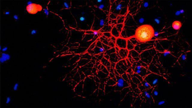 Peripheral Sensory Neuron