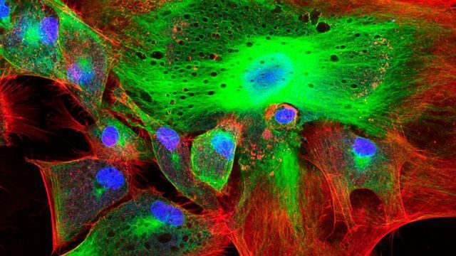 Caring for Your Confocal Microscope
