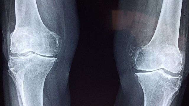 Researchers Find Method to Regrow Cartilage in the Joints