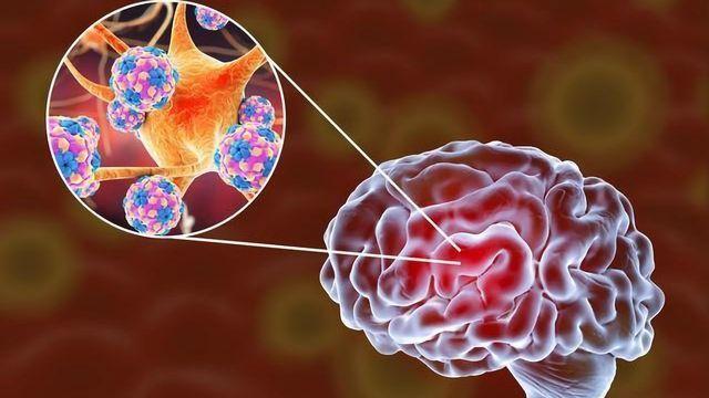 SARS-CoV-2 Can Infect Human Brain Organoids, Study Shows