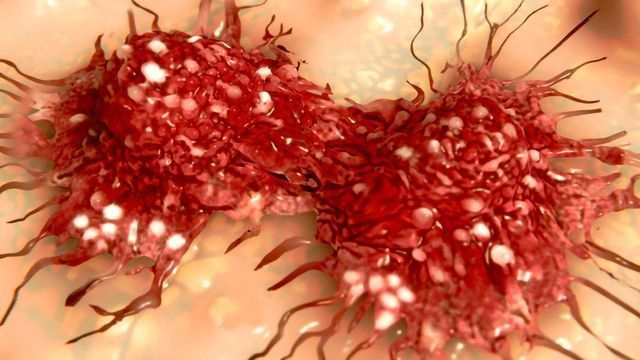 Immune Protein IL-17A To Blame for Some Side Effects of Gastric Cancer