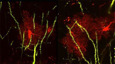 Astrocytes and Neurons