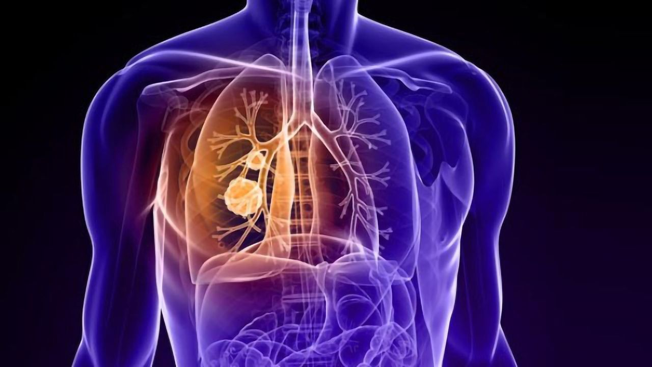 Boosting NK Cells' Ability To Fight Lung Cancer